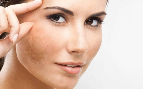 معاینه سلامتی پوست