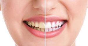 قدرت جرم گیری خمیر دندان