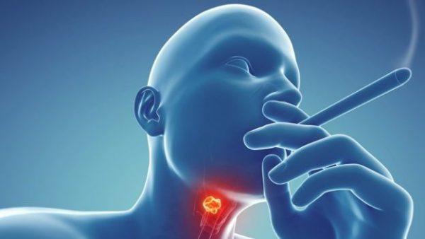 علل و علایم سرطان حنجره