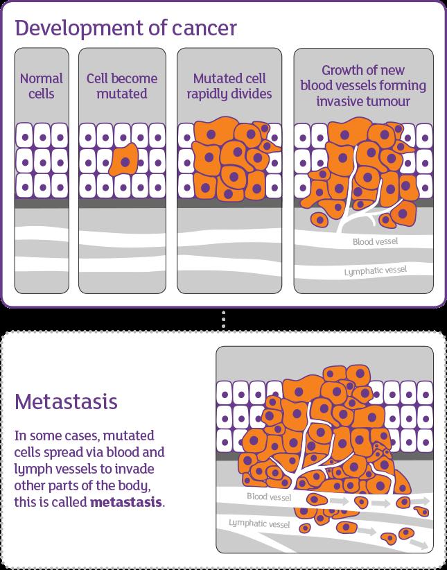 سلولهای سرطانی