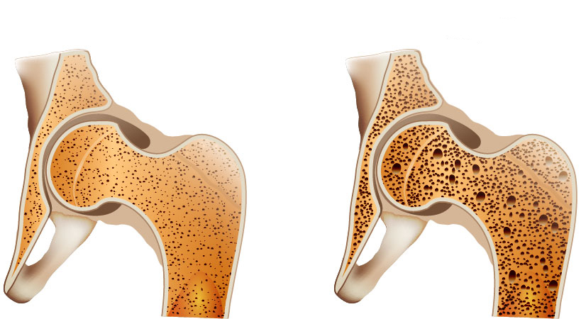 علت پوکی استخوان چیست؟
